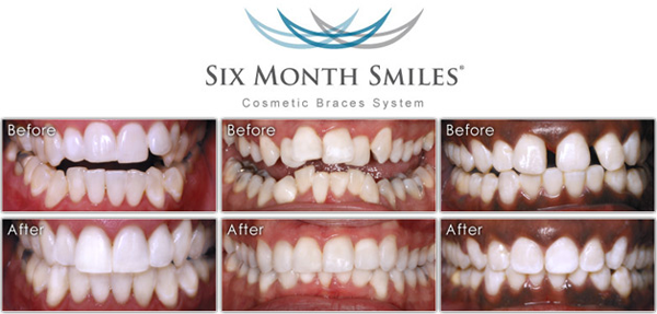 Six Month Smiles | Orthodontic Care