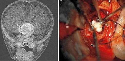 beyninden diş çıktı