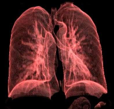 """Akciğer Kanseri 4""""²üncü Evreye Ne Zaman Gelir"""