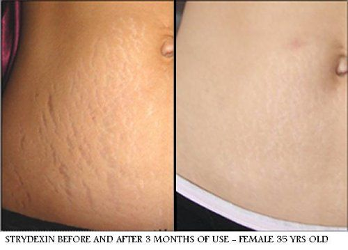 Wise Ways Beautiful Belly Balm stretch mark removal 02