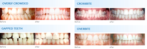Before and After Procedure | Orthodontic Care