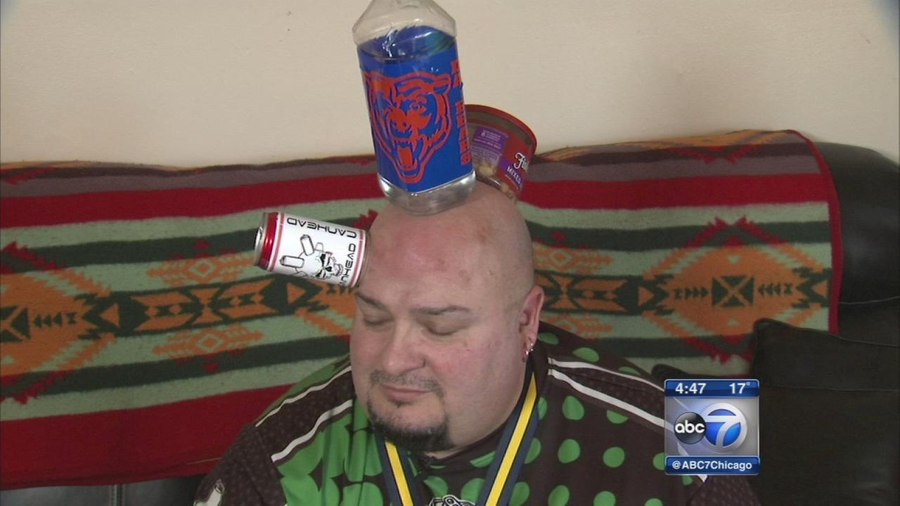 """Jamie Keeton, known as """"Can Head,"""" has a rare condition that allows objects to stick to his body."""
