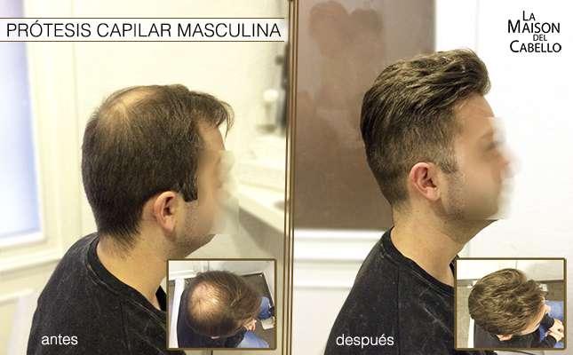 La máscara para los cabellos fructis el crecimiento en toda la fuerza