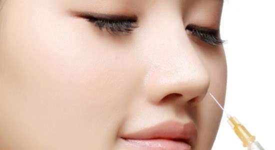 Nâng mũi không phẫu thuật cực kỳ đơn giản ai cũng thực hiện được