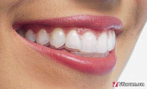 Các tác dụng quan trọng của niềng răng
