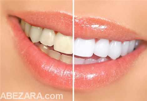 კბილების გათეთრება სახლის პირობებში