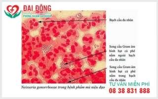 Thuoc khang sinh dieu tri benh lau
