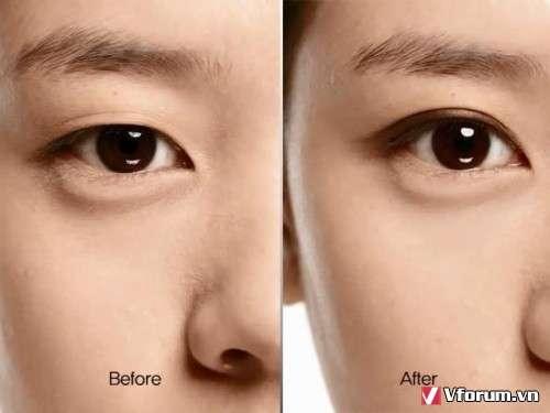 Phương pháp hẫu thuật cắt mí mắt chuẩn Hàn Quốc đem đến kết quả tuyệt vời