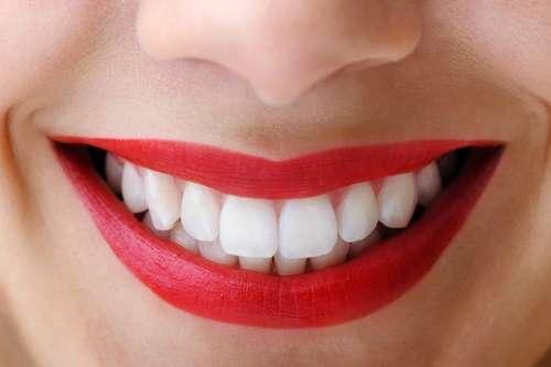 3 cách làm răng trắng tại nhà