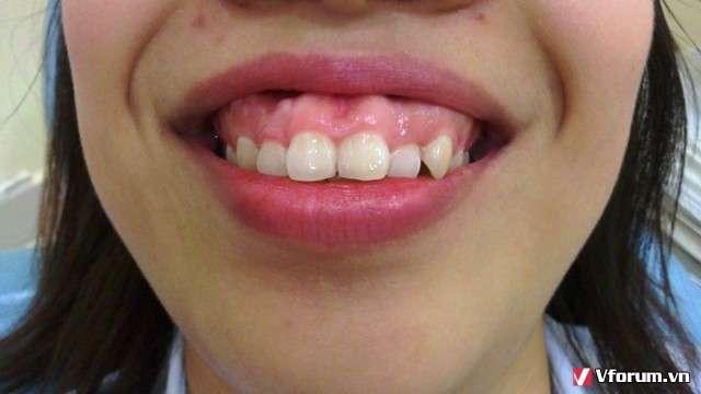 Tìm hiểu các phương pháp chữa cười hở lợi bằng phẫu thuật