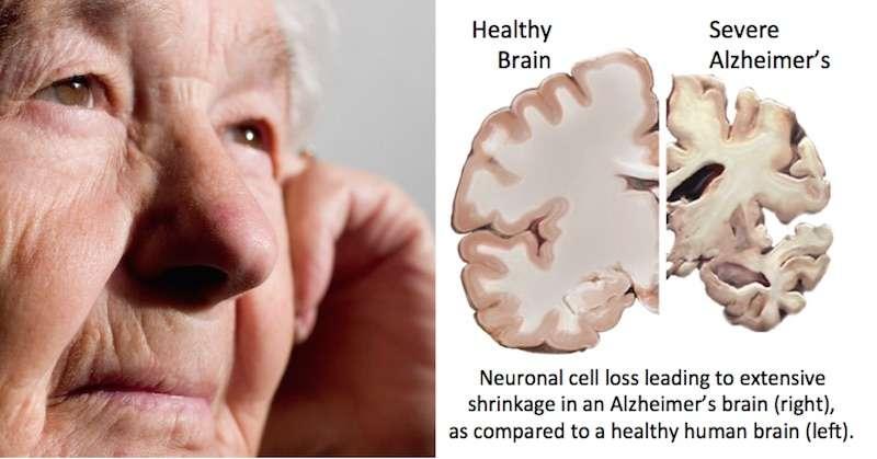 Benh Alzheimer la gi