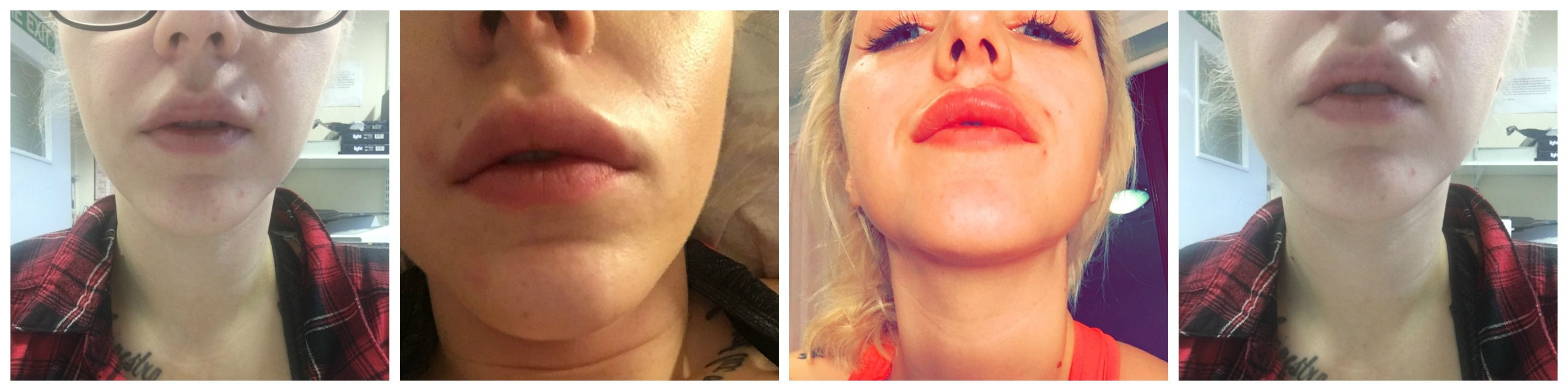 Lip Fillers Swelling After Photos