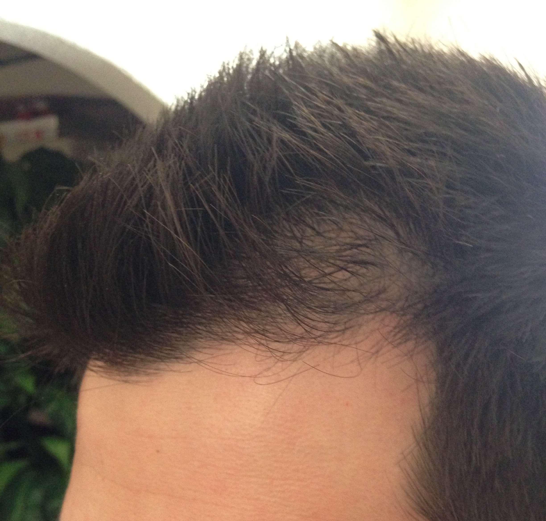 Caida del cabello en ciertas zonas