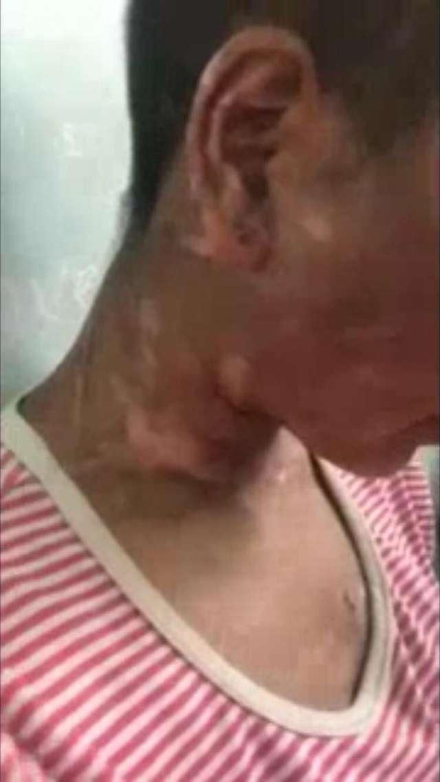 """Người làm thuê tố bà chủ bạo hành dã man đến mức """"má nhận không ra"""" - Ảnh 4"""