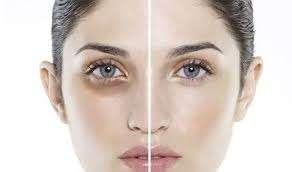 Top 5 cách trị quầng thâm mắt hiệu quả