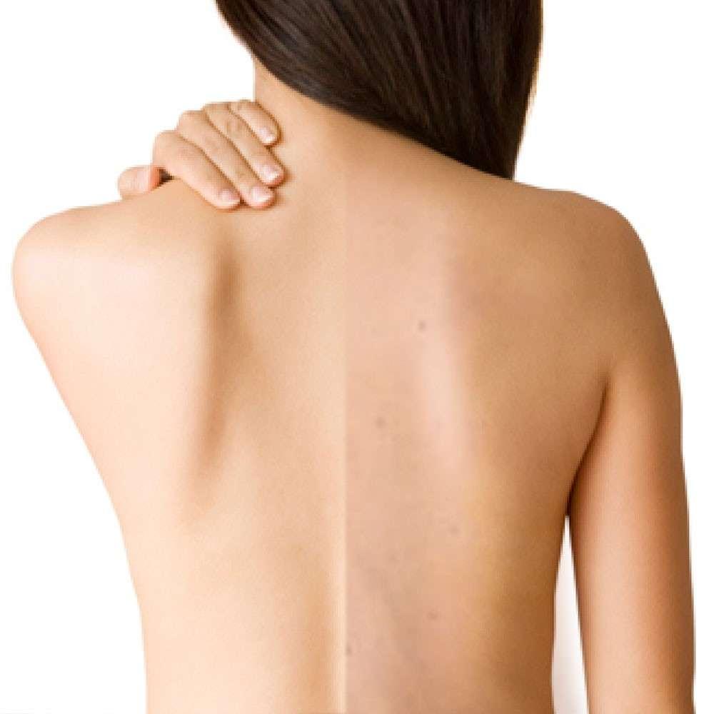 Top 4 cách trị mụn trên lưng bằng nguyên liệu tự nhiên