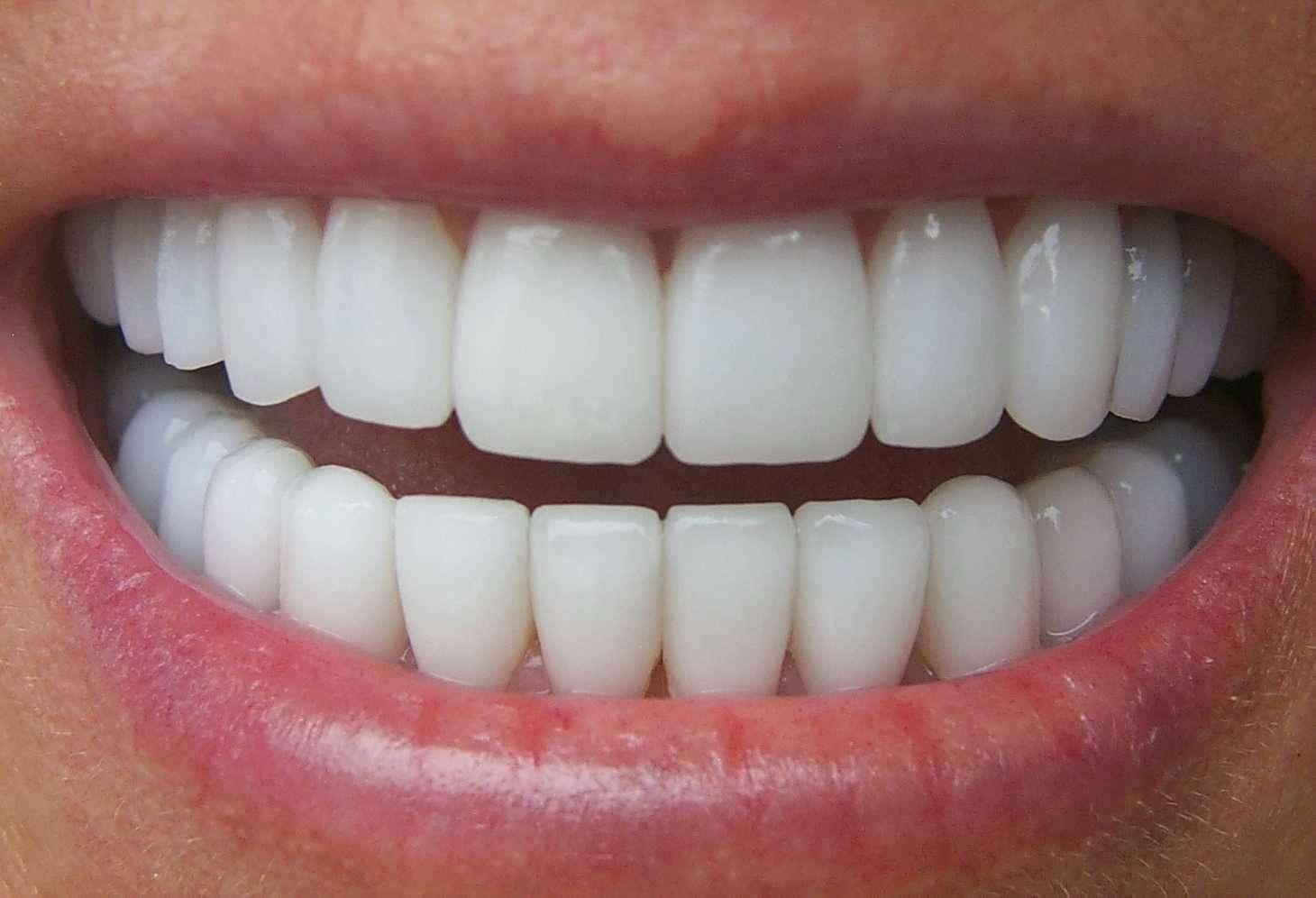 Tìm hiểu một số thắc mắc biết hỏi ai về bọc răng sứ thẩm mỹ