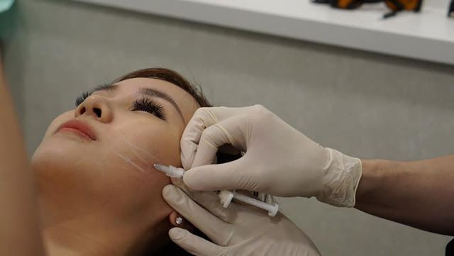 The Clifford Clinic Ellanse Fillers for Sunken Cheeks Singapore