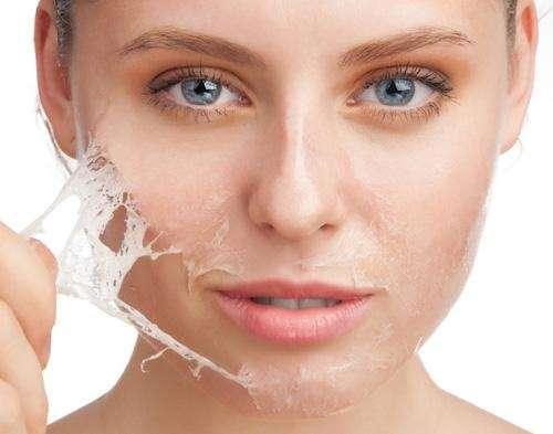 Các cách chăm sóc da khô thật chuẩn mà bạn không thể bỏ qua