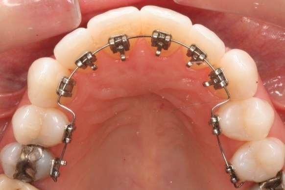 Phương pháp niềng răng cài mặt trong với công nghệ mới là như thế nào?