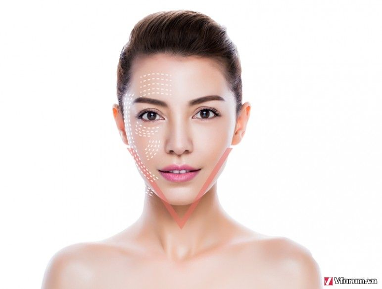 Căng da mặt đẹp tự nhiên – bạn cần biết những điều gì