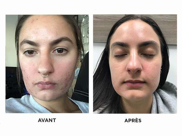 acné-sévère-skins-montreal-brossard