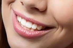 Top 5 cách tẩy trắng răng vô cùng an toàn