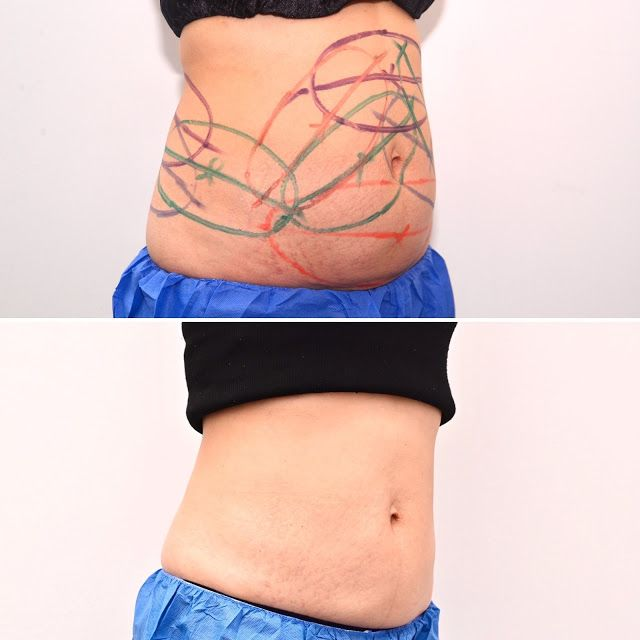 CoolSculpting Permanent Fat Loss Results Halley Body Slimming Clinic Singapore