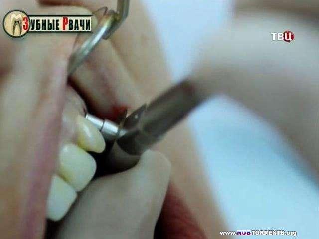 Без обмана. Зубные рвачи | SATRip