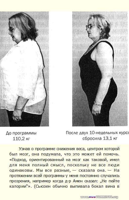 Мозг против лишнего веса