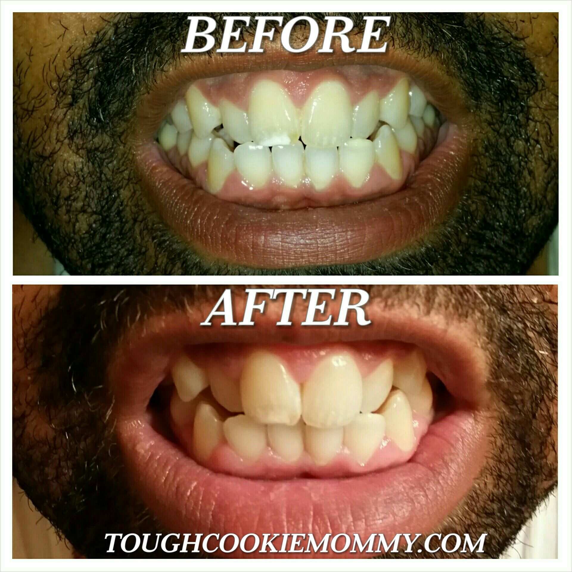 Brighten Your Smile And Teeth On A Budget