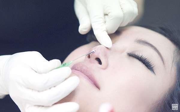 Nose Threadlift: The Latest Nose Aesthetic Procedure