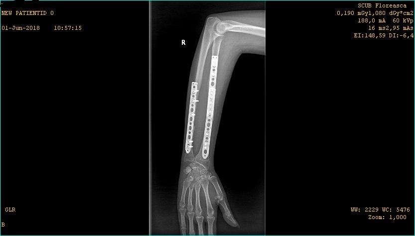 Hernia spinarii tratamentul clinicii Moscova