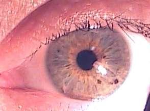 eye4a.jpg