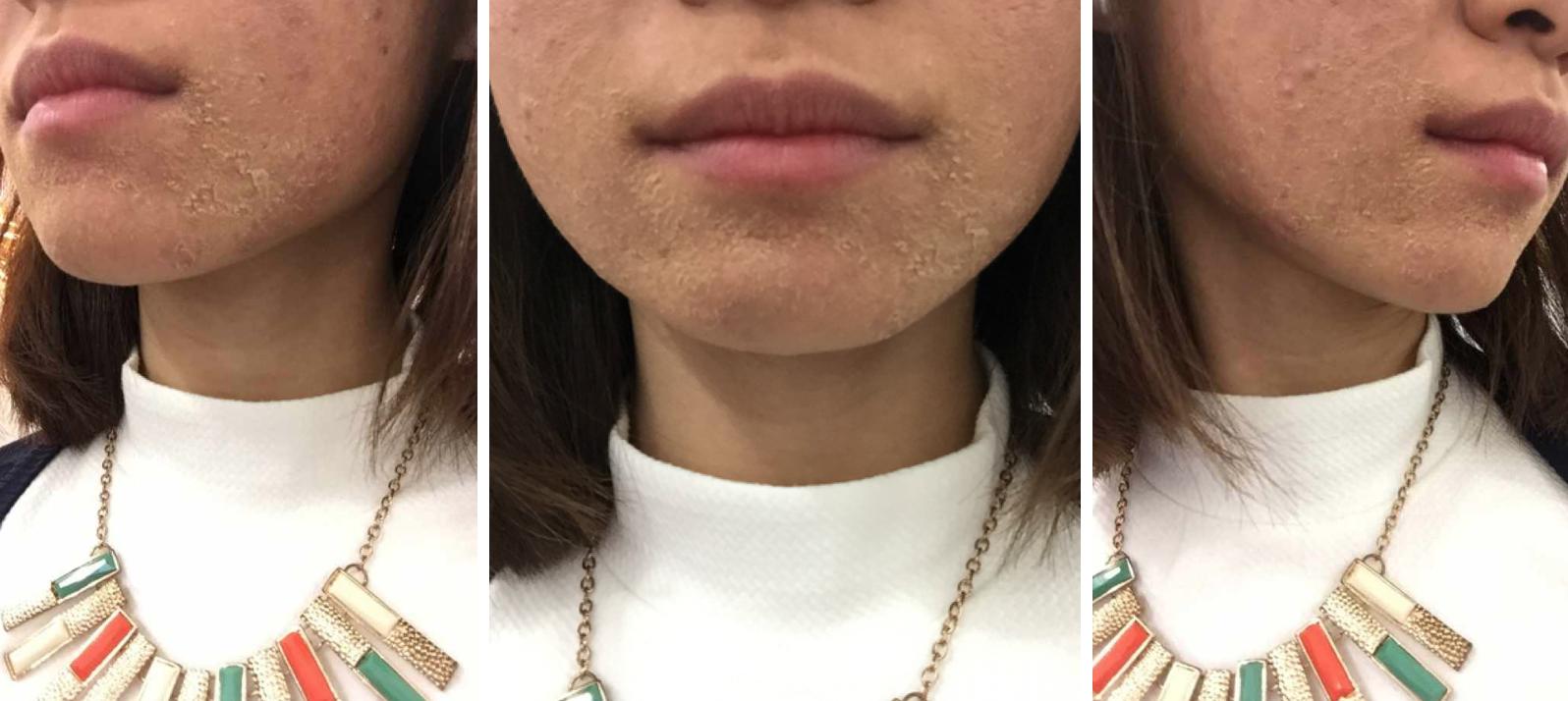 The Clifford Clinic Severe Cystic Acne Treatment Singapore AGNES Acne Treatment Q Switch Laser Treatment Review