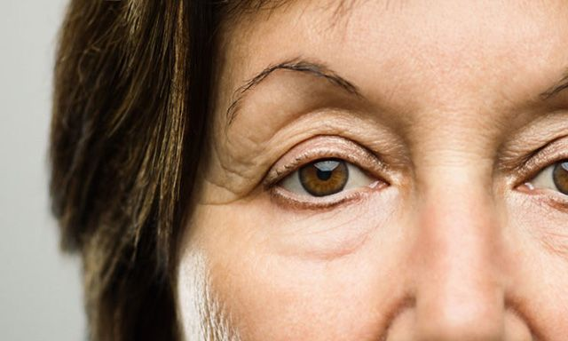 The Best Options for Droopy Eyelids and Dark Eye Circles