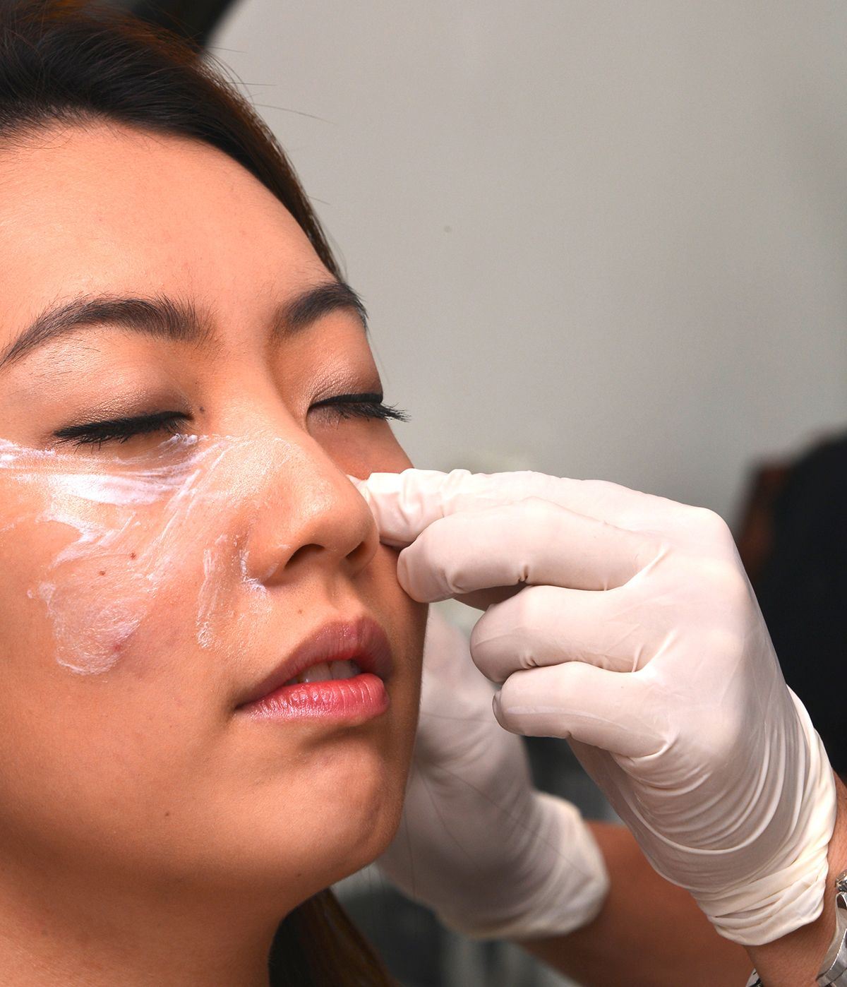 Rejuran Skin Healer Skin Rejuvenation Halley Medical Aesthetics Singapore