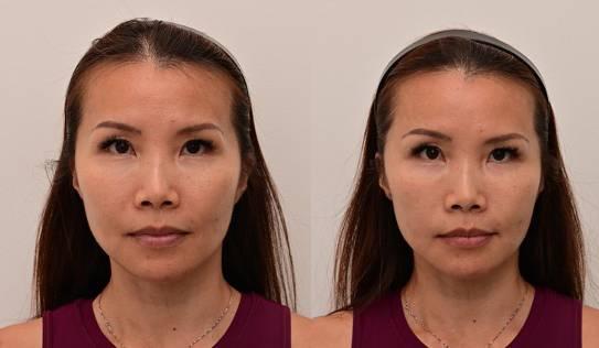 Sculptra in Singapore Review Add Volume Halley Medical Aesthetics