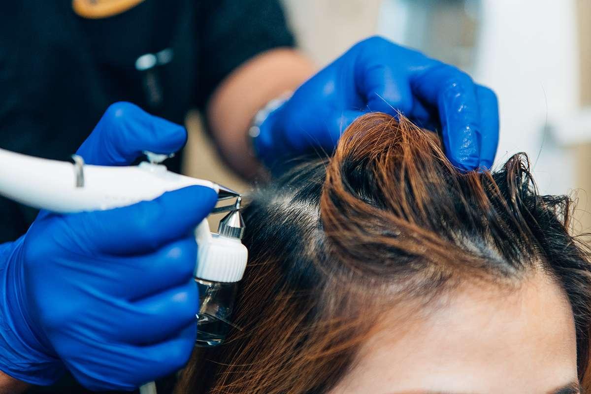 TK Trichokare Hair Scalp Hair Loss Treatment Singapore