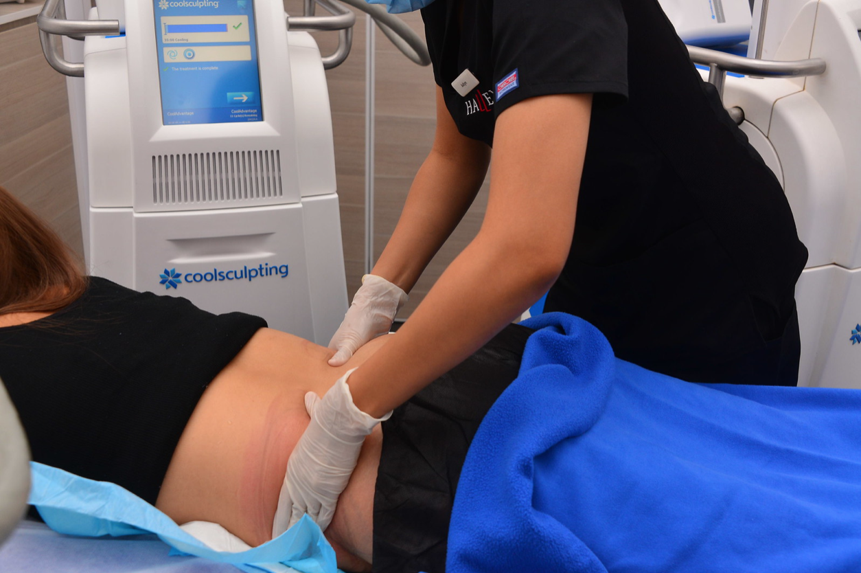 CoolSculpting Fat Reduction Results Halley Body Slimming Clinic Singapore