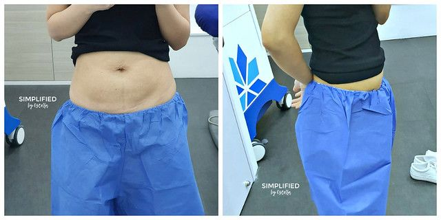 CoolSculpting Fat Reduction Results Halley Medical Aesthetics Singapore Review