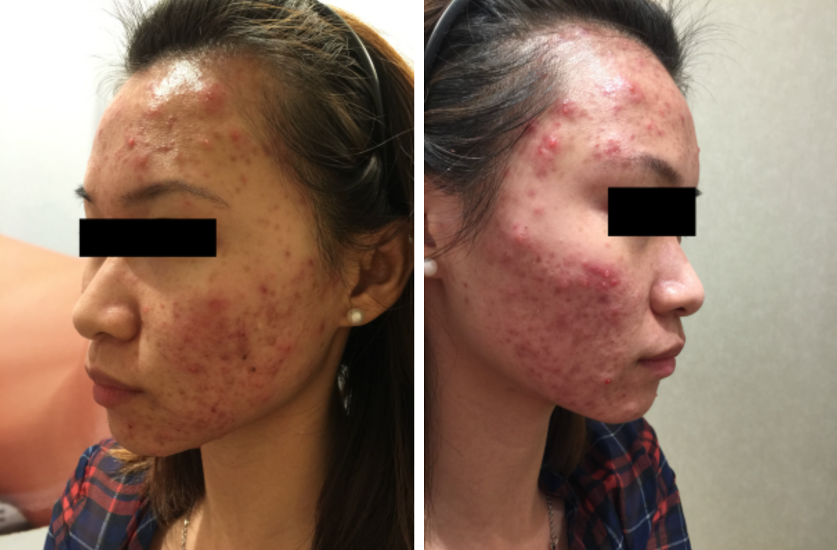 The Clifford Clinic Severe Cystic Acne Treatment Singapore AGNES Acne Treatment Q Switch Laser Treatment Review