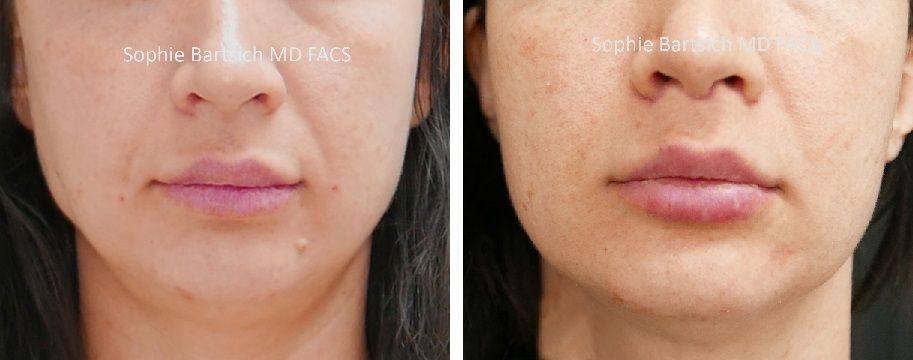 Lip Augmentation Plastic Surgery