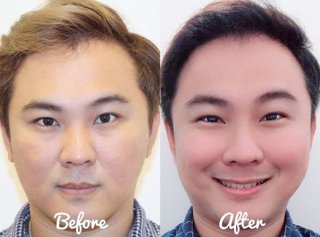 Hair Transplant Singapore The Clifford Clinic Dr. Chow Yuen Ho