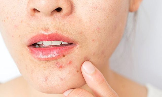Adult Acne Causes andTtreatment