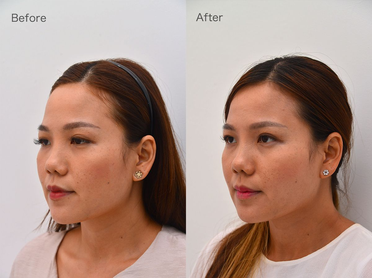 Ultherapy Results Halley Medical Aesthetics Singapore