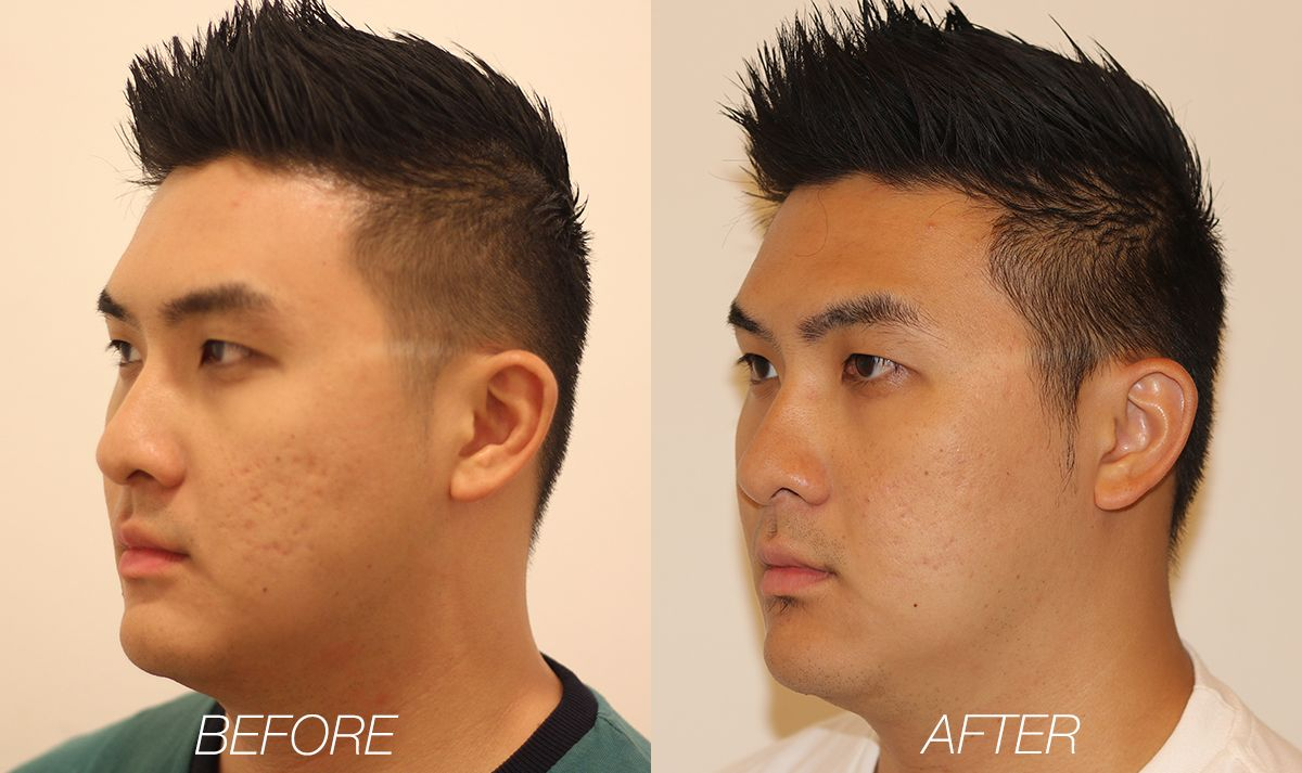 Best Acne Scar Removal Treatment in Singapore The Clifford Clinic