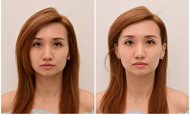Fillers Botox Results Singapore halley Medical Aesthetics