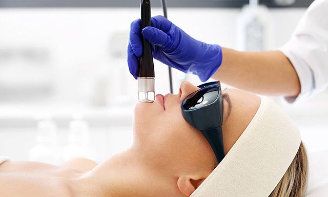 Acne Scar Removal Laser Treatment