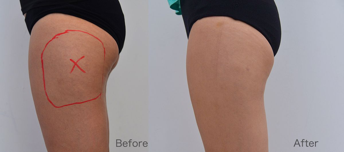 CoolSculpting Fat Reduction Results Halley Body Slimming Clinic Singapore Review